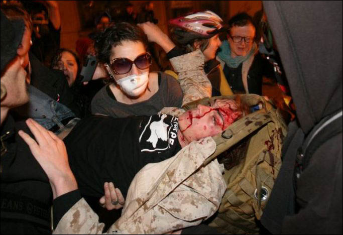 dead-head_Monte-scott_olsen_wounded.jpg