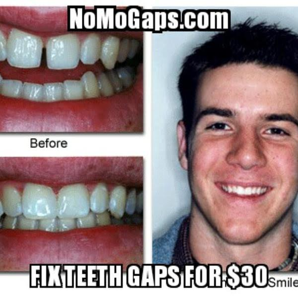 NoMoGaps Close Teeth Gaps For Only $30