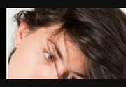 La transplantation des cheveu a sankt-peterbourge