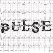 Sitric - Pulse