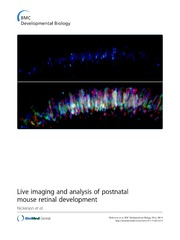 Vol 13: Live imaging and analysis of postnatal mouse retinal development.