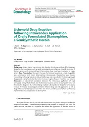 Vol 5: Lichenoid Drug Eruption following Intravenous Application of Orally Formulated Diamorphine, a Semisynthetic Heroin.