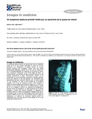 Vol 16: Un lymphome pidural primitif rvl par un syndrome de la queue de cheval.