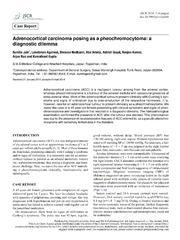 Vol 2014: Adrenocortical carcinoma posing as a pheochromocytoma: a diagnostic dilemma.