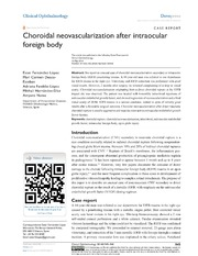 Vol 8: Choroidal neovascularization after intraocular foreign body.