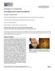 Vol 17: Zona atypique chez un patient immunodprim