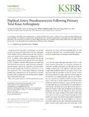 Vol 26: Popliteal Artery Pseudoaneurysm Following Primary Total Knee Arthroplasty.
