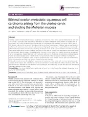 Vol 9: Bilateral ovarian metastatic squamous cell carcinoma arising from the uterine cervix and eluding the Mullerian mucosa.