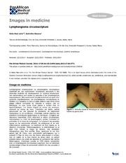 Vol 17: Lymphangioma circumscriptum.