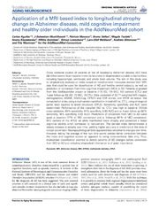 Vol 6: Application of a MRI based index to longitudinal atrophy change in Alzheimer disease, mild cognitive impairment and healthy older individuals in the AddNeuroMed cohort.