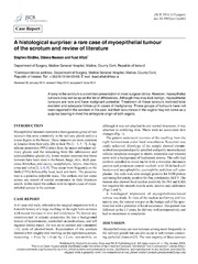 Vol 2014: A histological surprise: a rare case of myoepithelial tumour of the scrotum and review of literature.