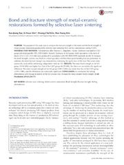 Vol 6: Bond and fracture strength of metal-ceramic restorations formed by selective laser sintering.