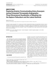 Vol 55: Rupturing Anterior Communicating Artery Aneurysm during Computed Tomography Angiography: Three-Dimensional Visualization of Bleeding into the Septum Pellucidum and the Lateral Ventricle.